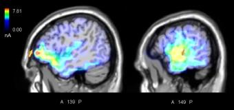 Musica e movimento, ecco come il cervello impara dagli errori altrui