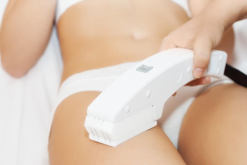 Eliminare i peli superflui in maniera sicura e duratura con l'epilazione laser