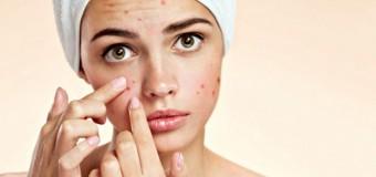 L'acne, può non essere più un vostro problema!