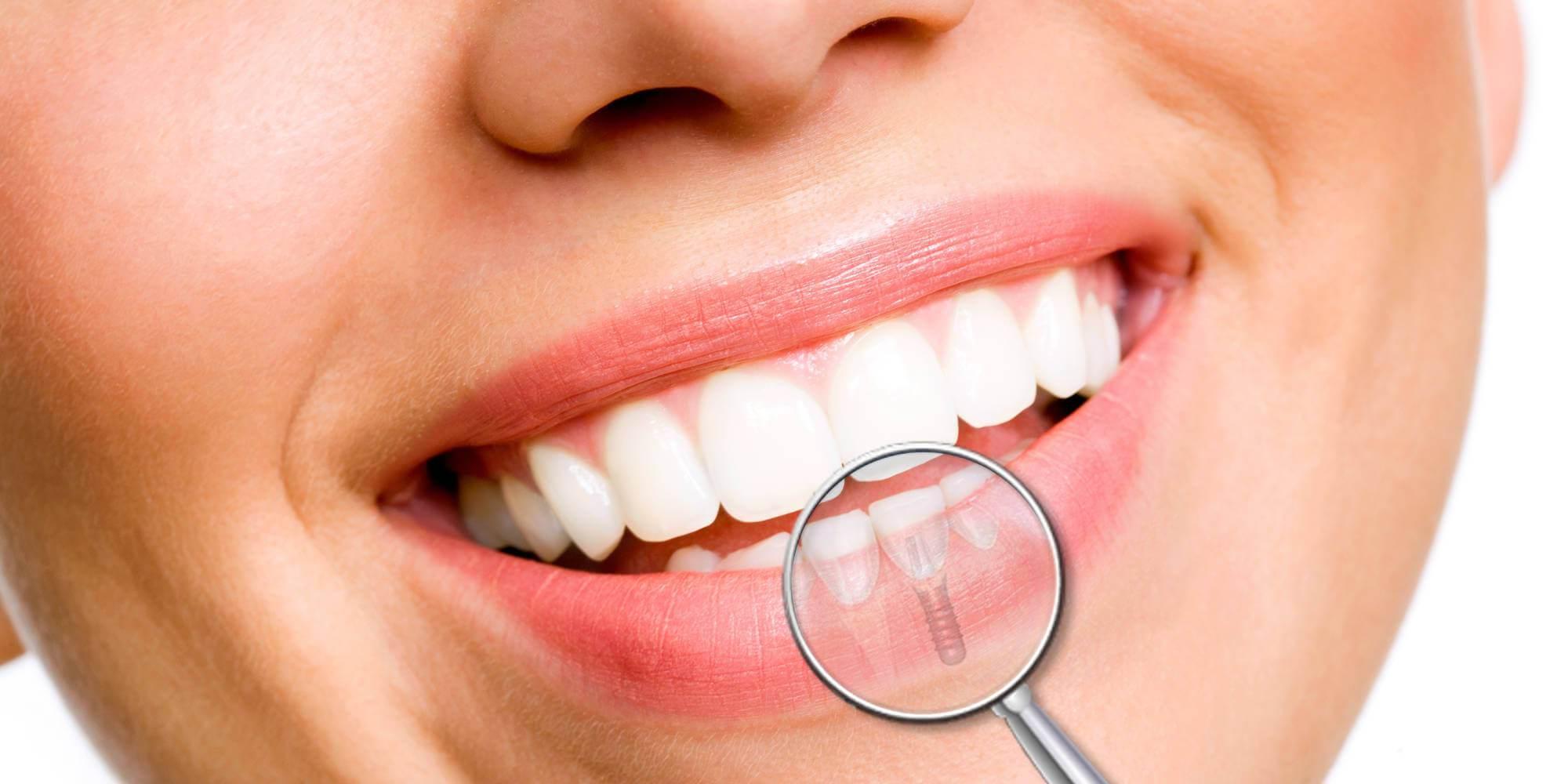 Il dentista: un amico per la tua bocca