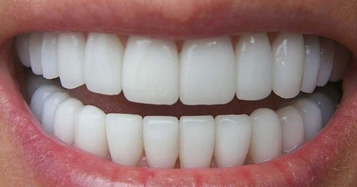 Dentatura perfetta! Un alleato di salute e benessere