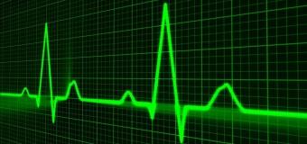 Qual è il legame tra fibrillazione atriale e demenza? Lo dice un modello matematico