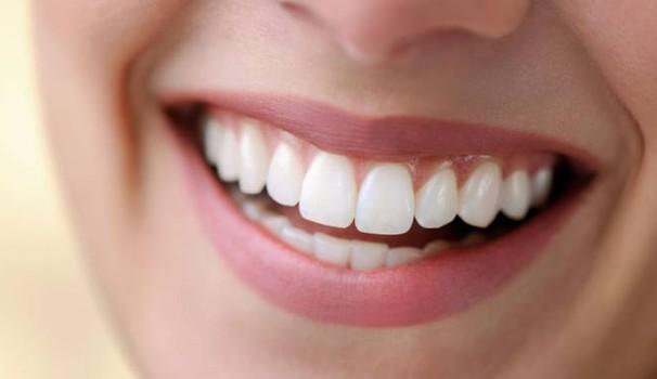 Odontoiatria estetica: di cosa si tratta?