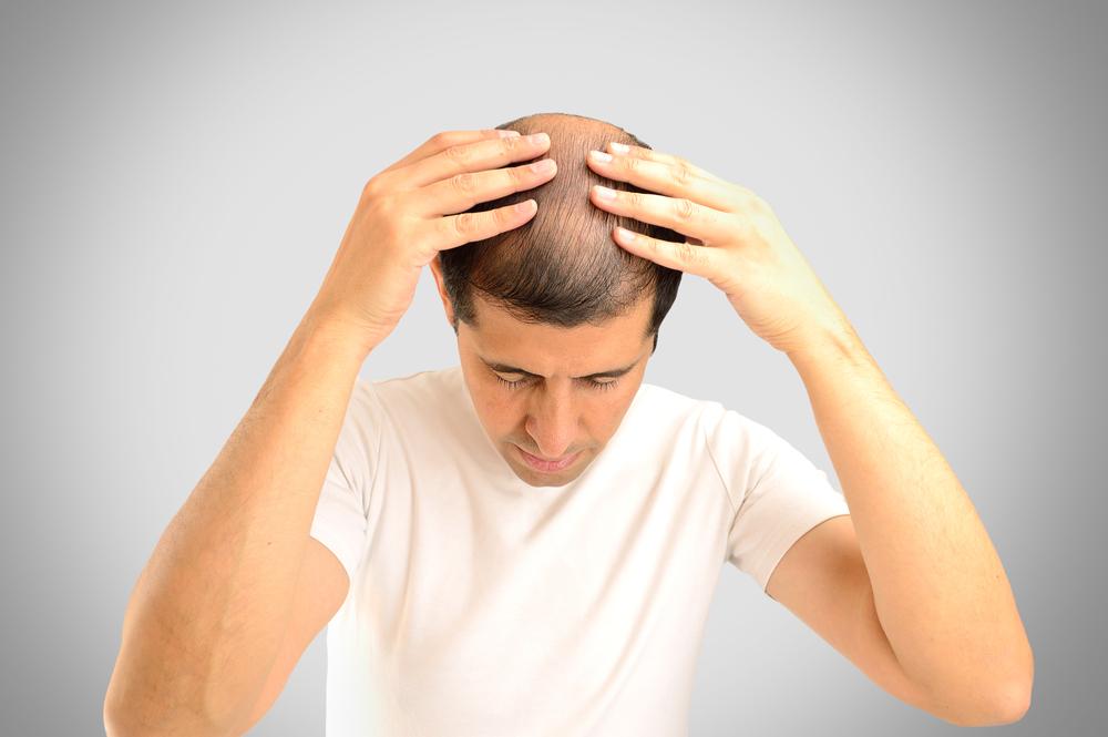 La tricopigmentazione per l'infoltimento capelli non chirurgico