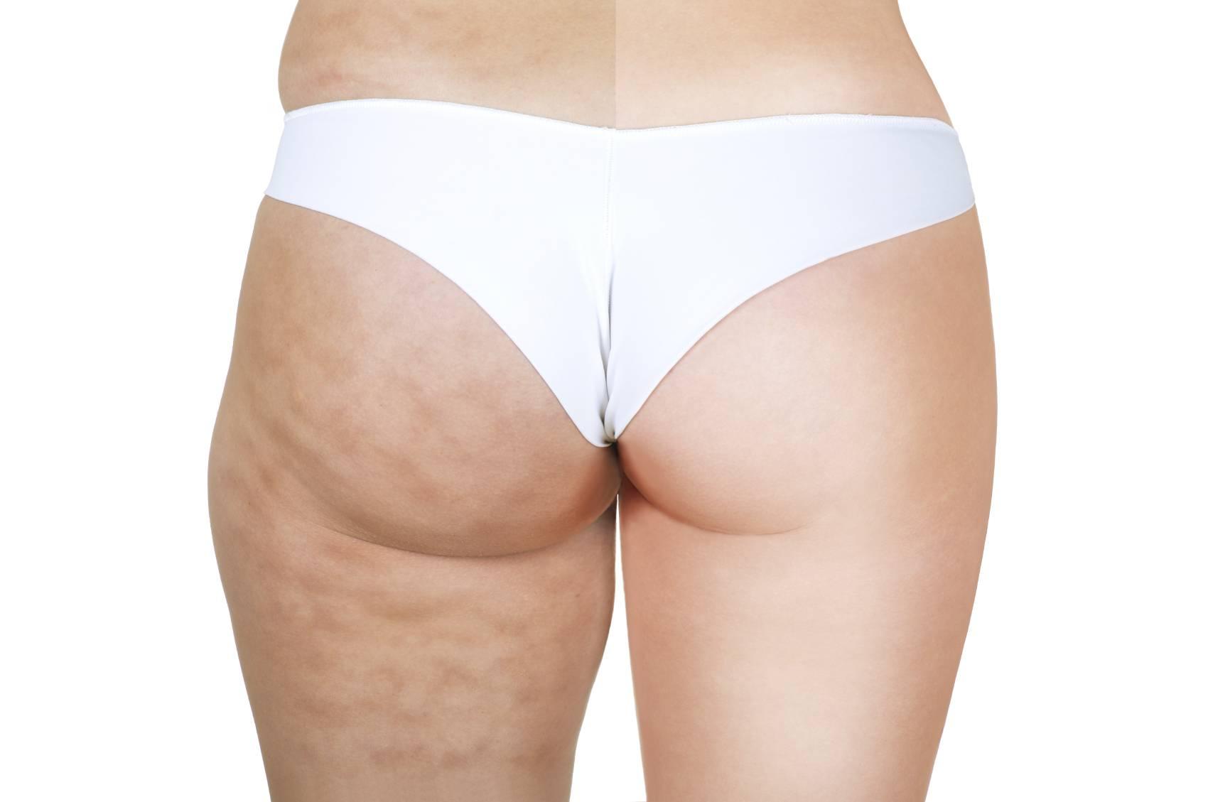 Come si elimina la cellulite?