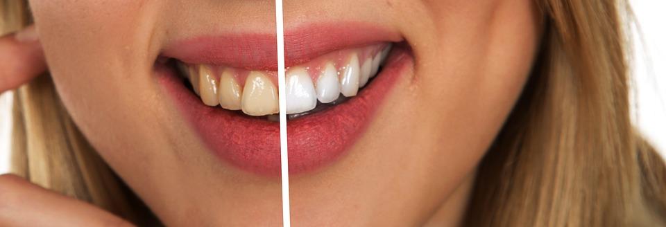 Un sorriso da star con denti luminosi; i rimedi naturali