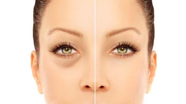 Creme per il contorno occhi: a che età è consigliabile iniziare a usarle?