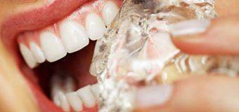 Mi fanno male i denti quando addento cibi freddi: cosa devo fare?