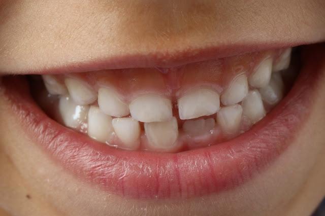 Bambini e caduta primi denti: i consigli di Dental World Clinic